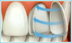 цена виниров на 1 зуб в спб